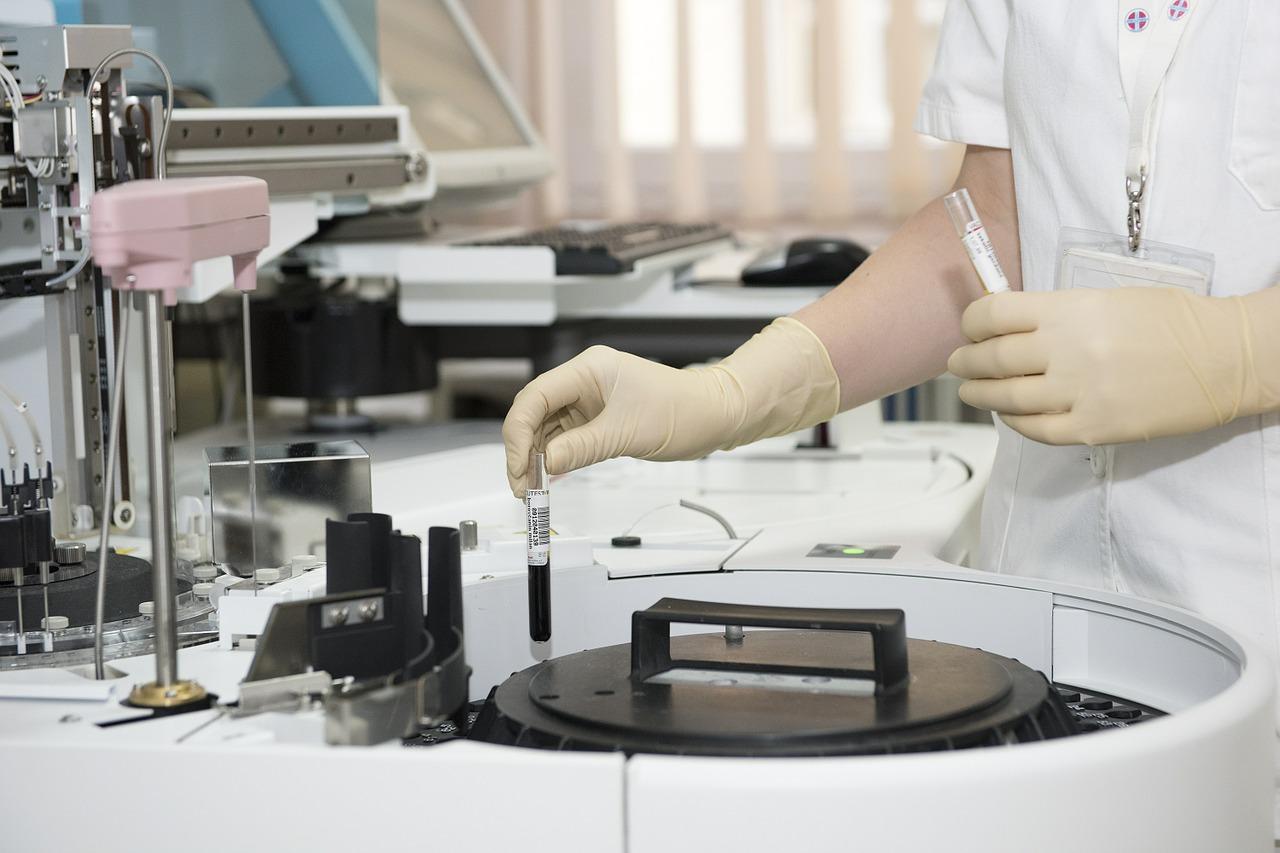 Nueva alerta alimentaria en Andalucía por Listeria: la marca malagueña La Montanera del Sur ¿Están funcionando los protocolos?