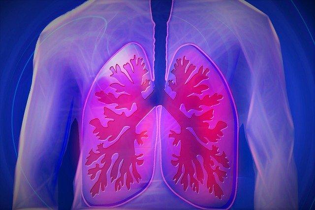 Investigadores de Andalucía desvelan el papel fundamental de una proteína en el desarrollo de cáncer de pulmón