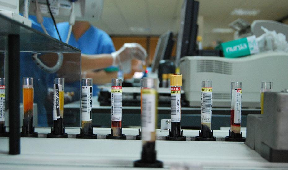 Investigadores andaluces descubren que la hiperglucemia es un factor de riesgo alto en la COVID-19