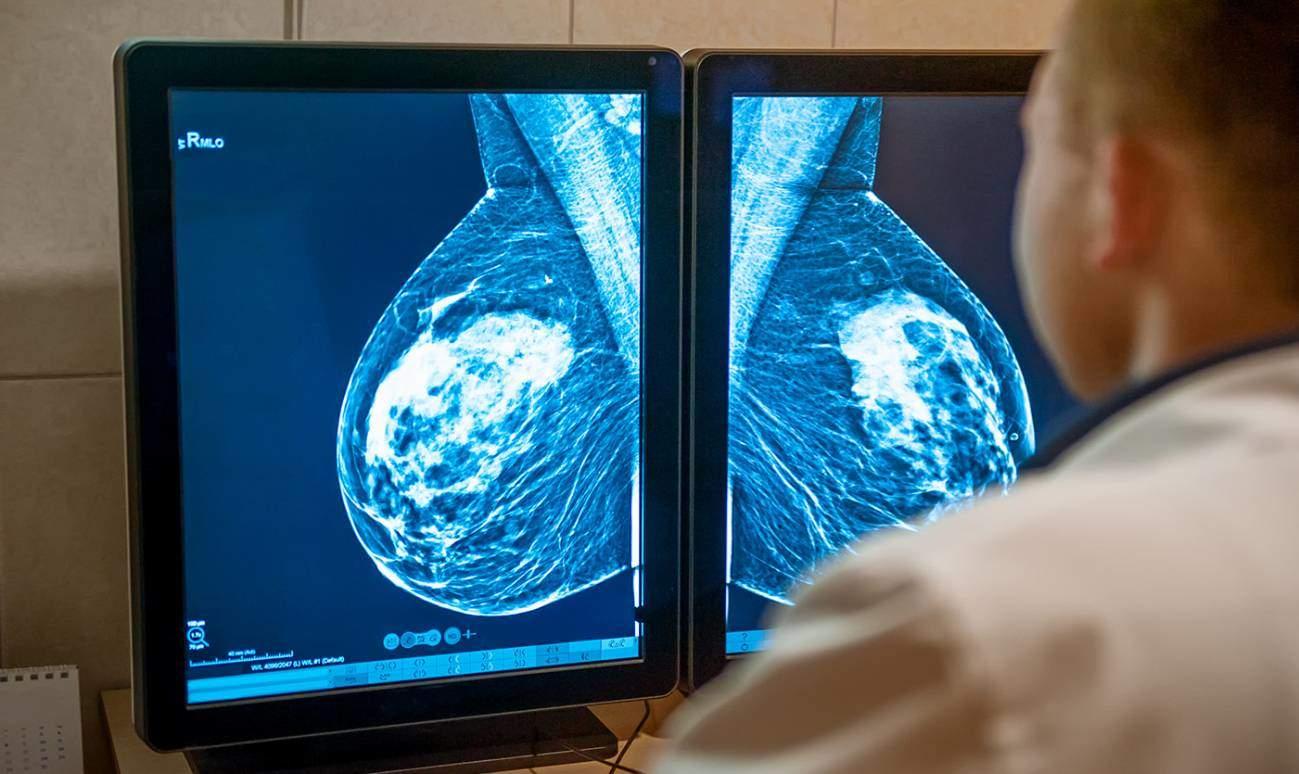 Algunas mujeres con cáncer de mama podrán evitar la quimioterapia